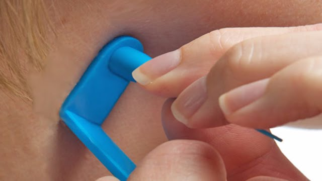 Does a Skin Tag Removal Tool Work?
